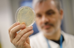 Doctor Paul McKay, who is working on a vaccine for the 2019-nCoV strain of the novel coronavirus, Covid-19, poses for a photograph with bacteria containing the coronavirus, Covid-19, DNA, at Imperial College School of Medicine (ICSM) in London on February 10, 2020. - A team of UK scientists believe they are one of the first to start animal testing of a vaccine for the new coronavirus that has killed more than 1,000 people and spread around the world. PHOTO: TOLGA AKMEN / AFP